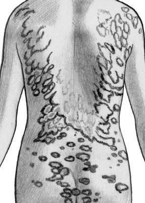 Микоз кожи: фото, симптомы, препараты, лечение
