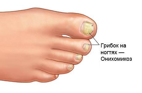 Грибок на ногтях - оникомикоз