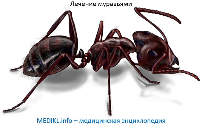 Лечение муравьями