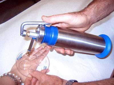 Удалить родинку жидким азотом