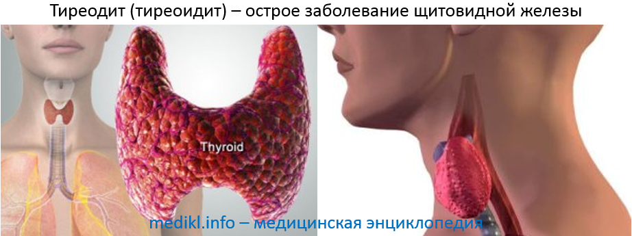 Тиреоидит (тиреодит) - острое заболевание щитовидной железы